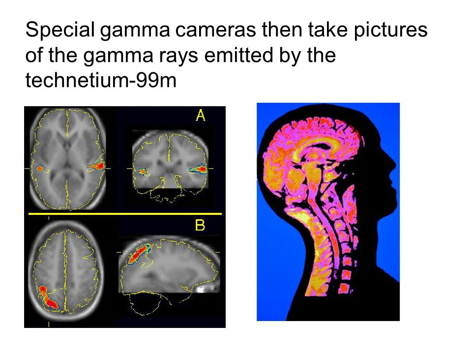 Special gamma cameras then take pictures of the gamma rays emitted by the technetium-99m