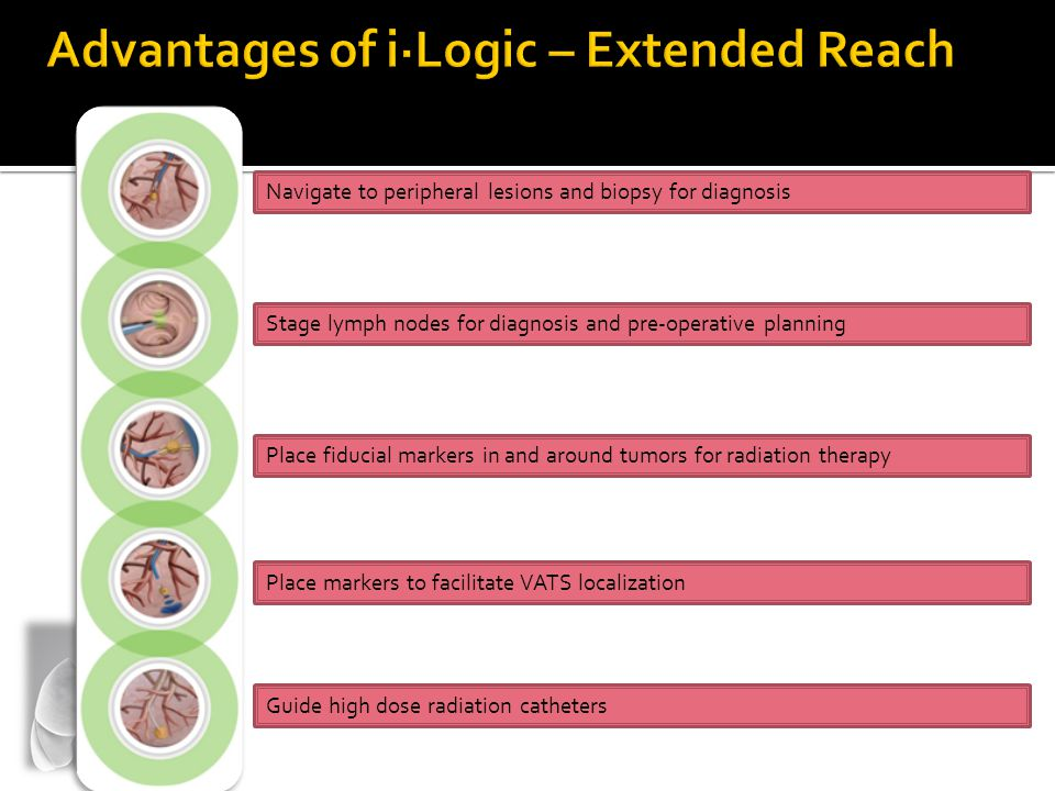 Advantages of i·Logic – Extended Reach