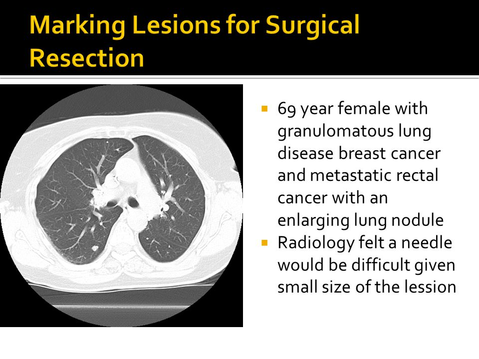 Marking Lesions for Surgical Resection