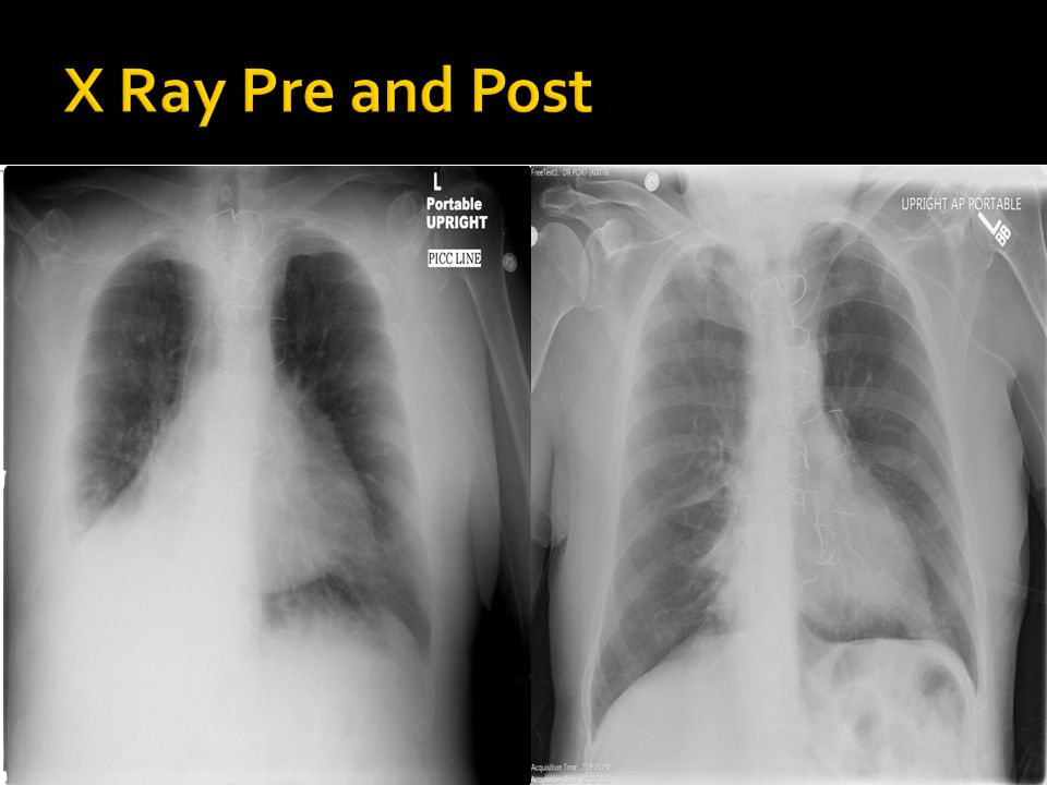 X Ray Pre and Post