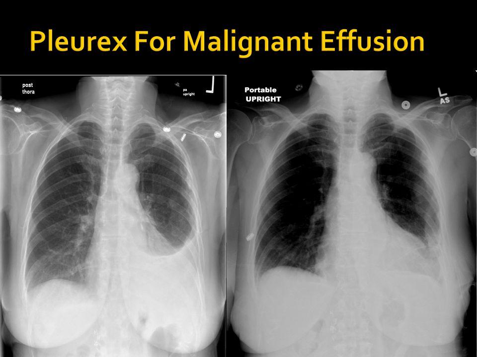 Pleurex For Malignant Effusion