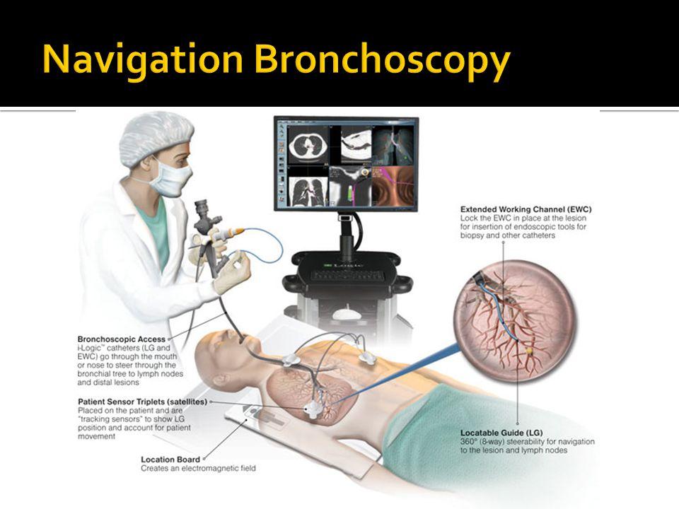 Navigation Bronchoscopy
