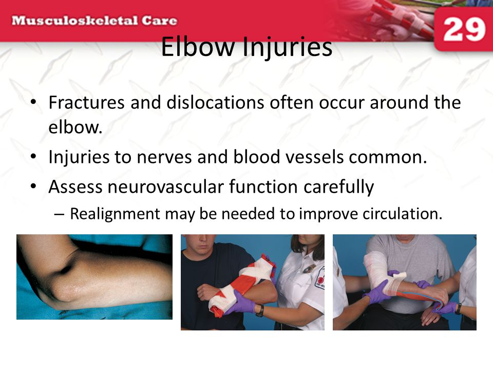 Elbow Injuries Fractures and dislocations often occur around the elbow. Injuries to nerves and blood vessels common.