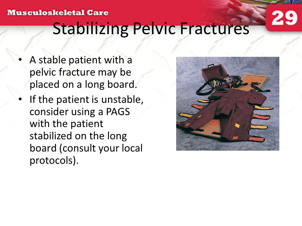 Stabilizing Pelvic Fractures