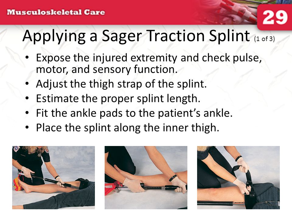 Applying a Sager Traction Splint (1 of 3)