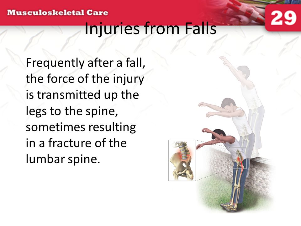 Injuries from Falls
