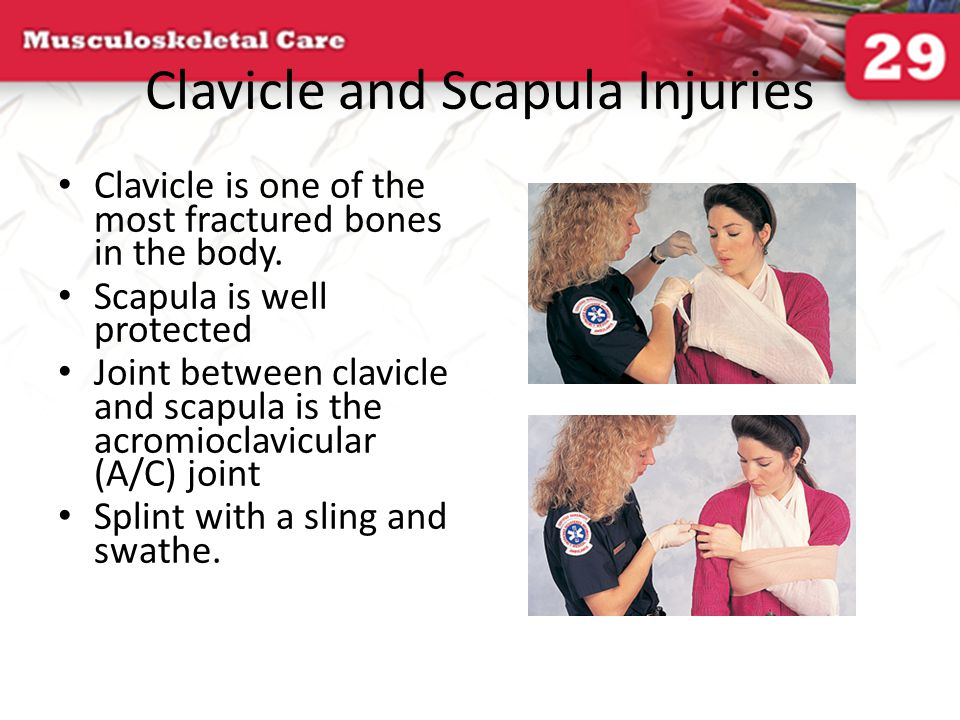 Clavicle and Scapula Injuries