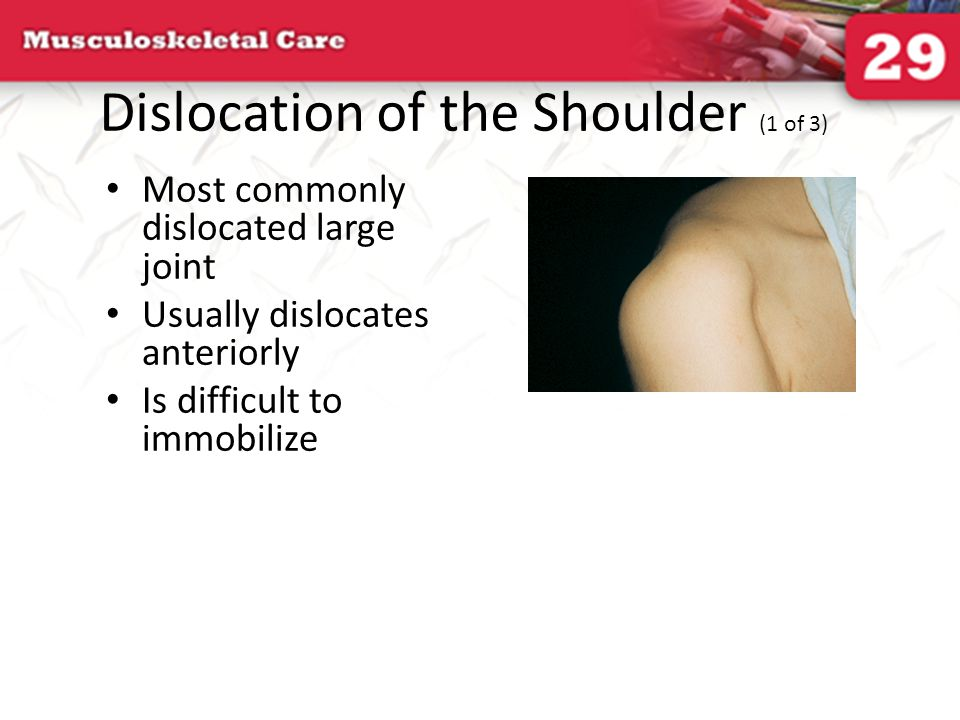 Dislocation of the Shoulder (1 of 3)