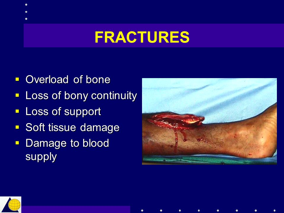 FRACTURES Overload of bone Loss of bony continuity Loss of support
