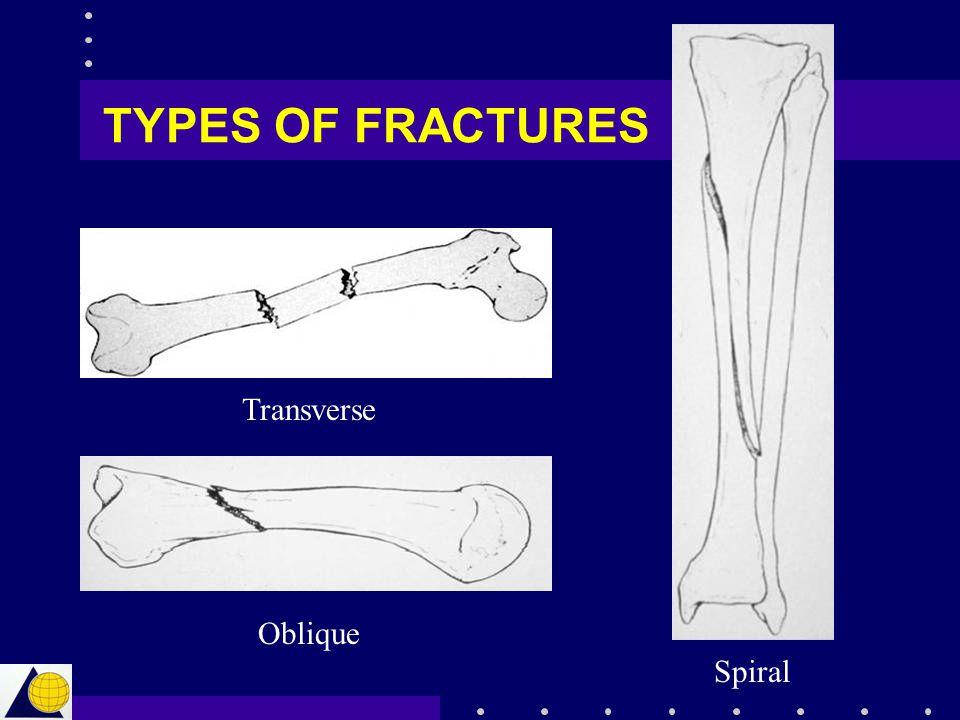 TYPES OF FRACTURES Transverse Oblique Spiral