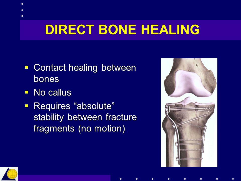 DIRECT BONE HEALING Contact healing between bones No callus