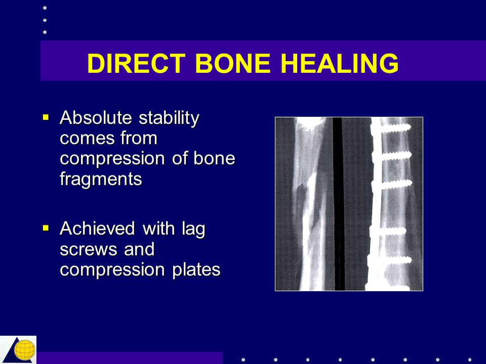DIRECT BONE HEALING Absolute stability comes from compression of bone fragments.
