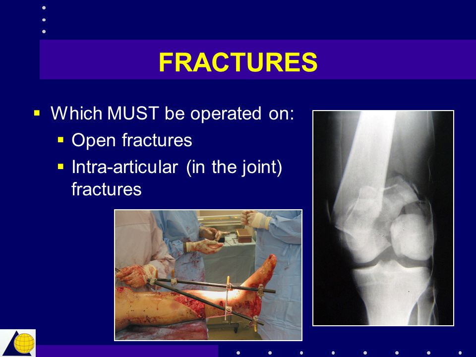 FRACTURES Which MUST be operated on: Open fractures