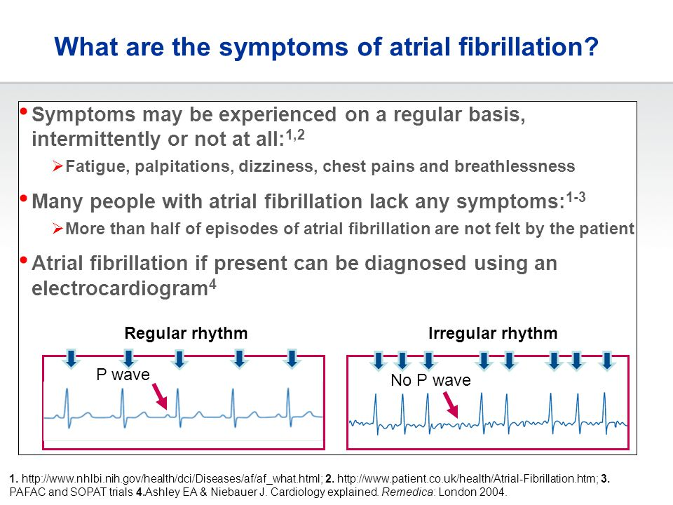 What are the symptoms of atrial fibrillation