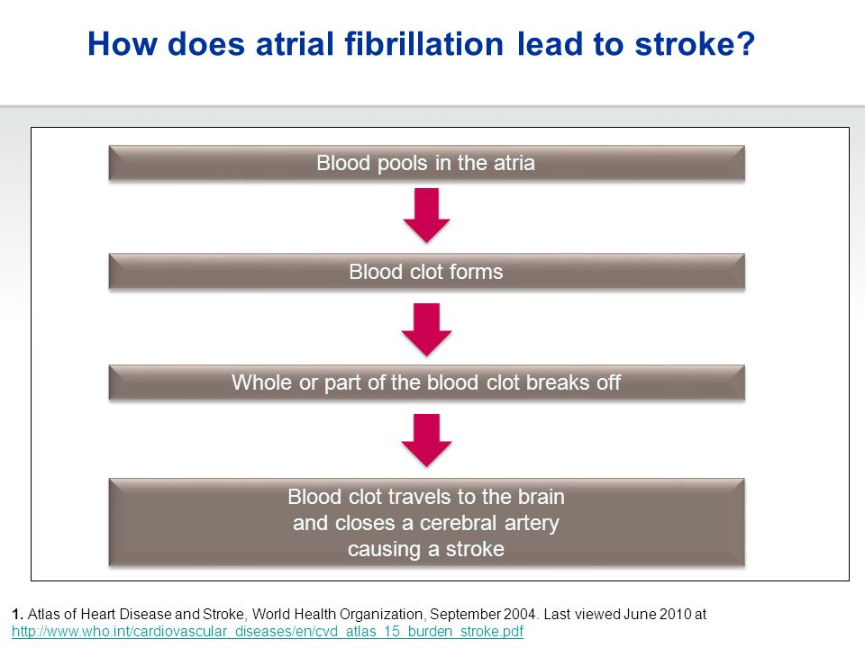 How does atrial fibrillation lead to stroke