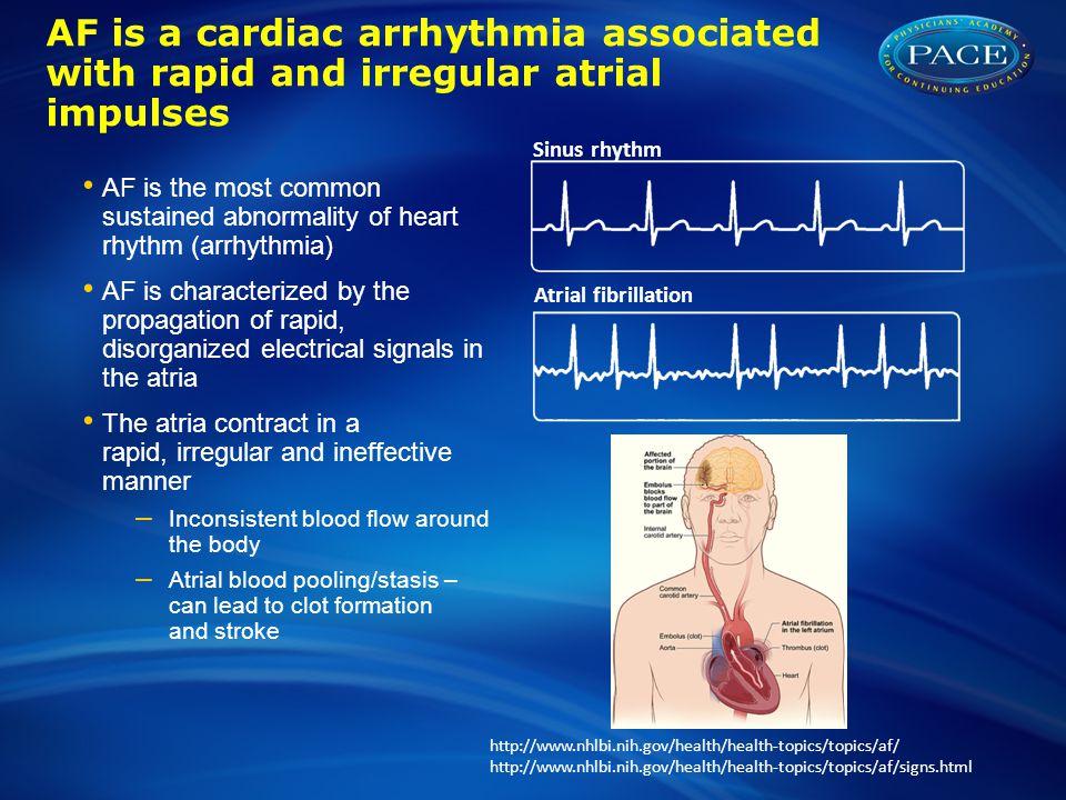AF is a cardiac arrhythmia associated with rapid and irregular atrial impulses