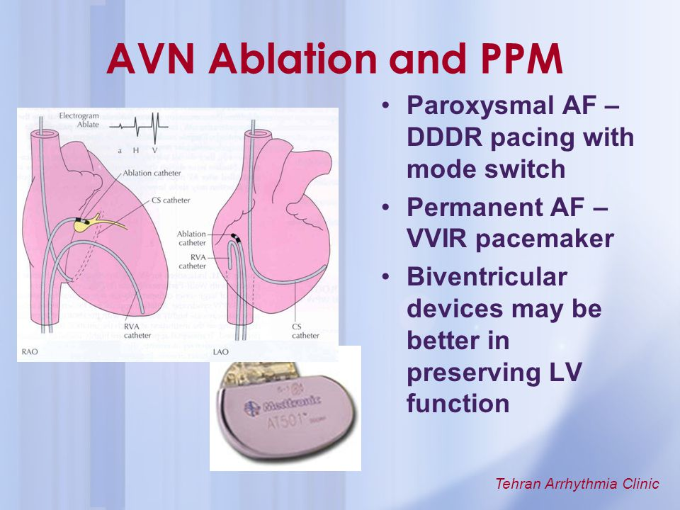 AVN Ablation and PPM Paroxysmal AF – DDDR pacing with mode switch
