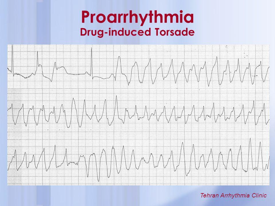Proarrhythmia Drug-induced Torsade