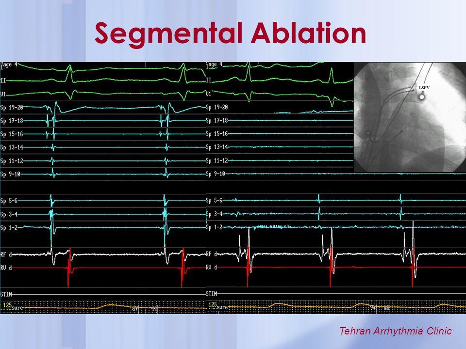 Segmental Ablation