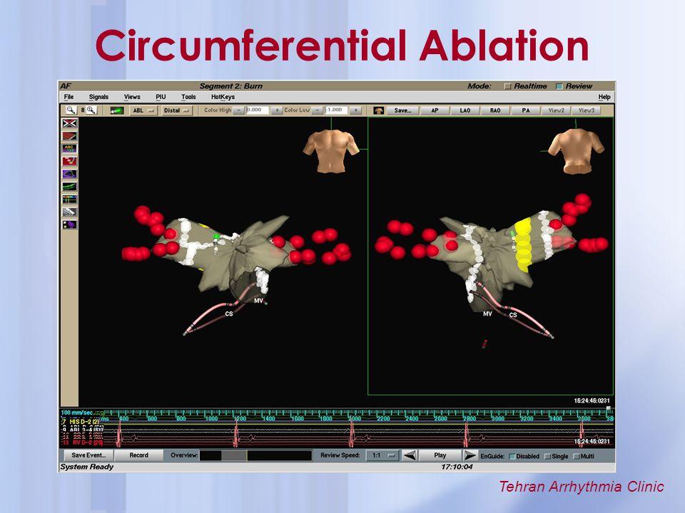 Circumferential Ablation