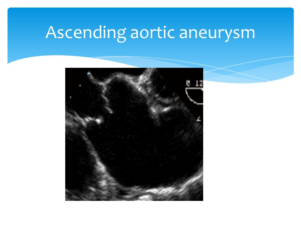 Ascending aortic aneurysm