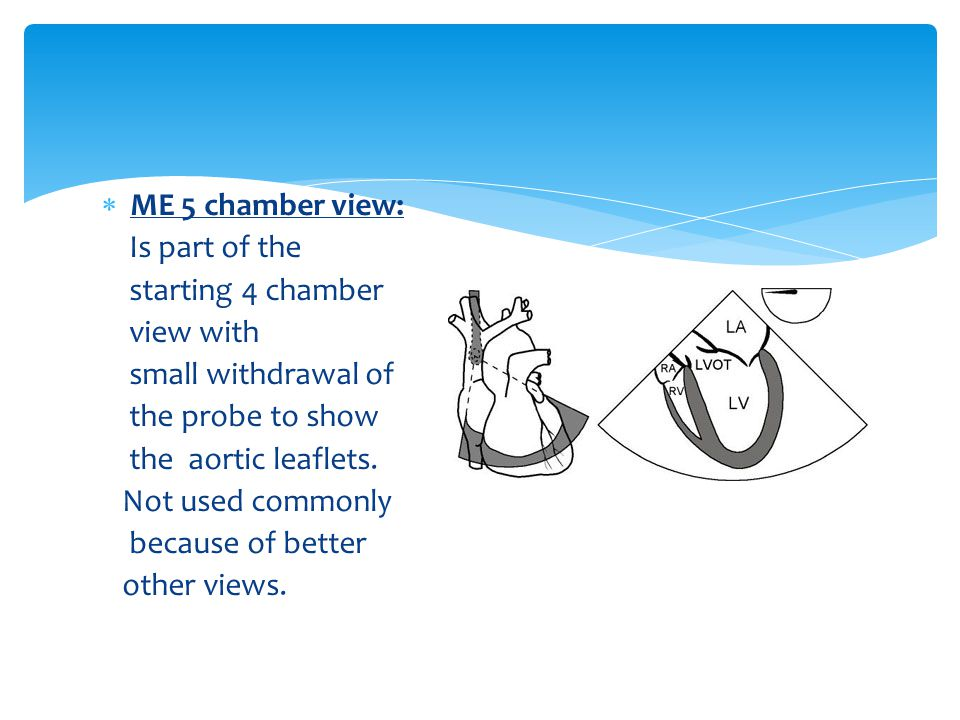ME 5 chamber view: Is part of the. starting 4 chamber. view with. small withdrawal of. the probe to show.