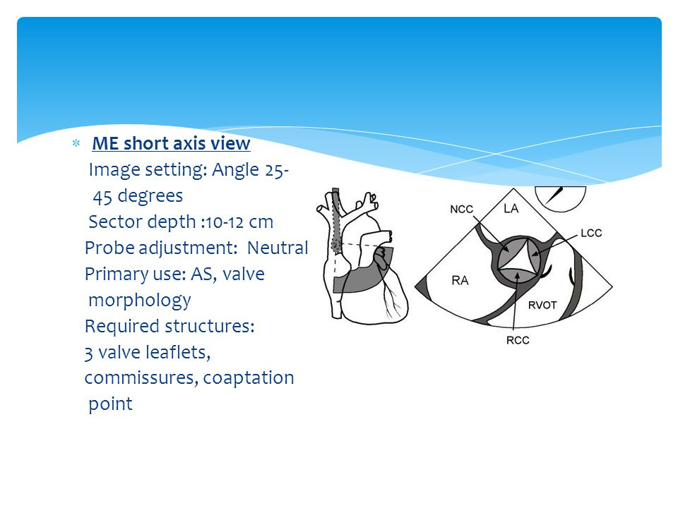 ME short axis view Image setting: Angle 25- 45 degrees. Sector depth :10-12 cm. Probe adjustment: Neutral.