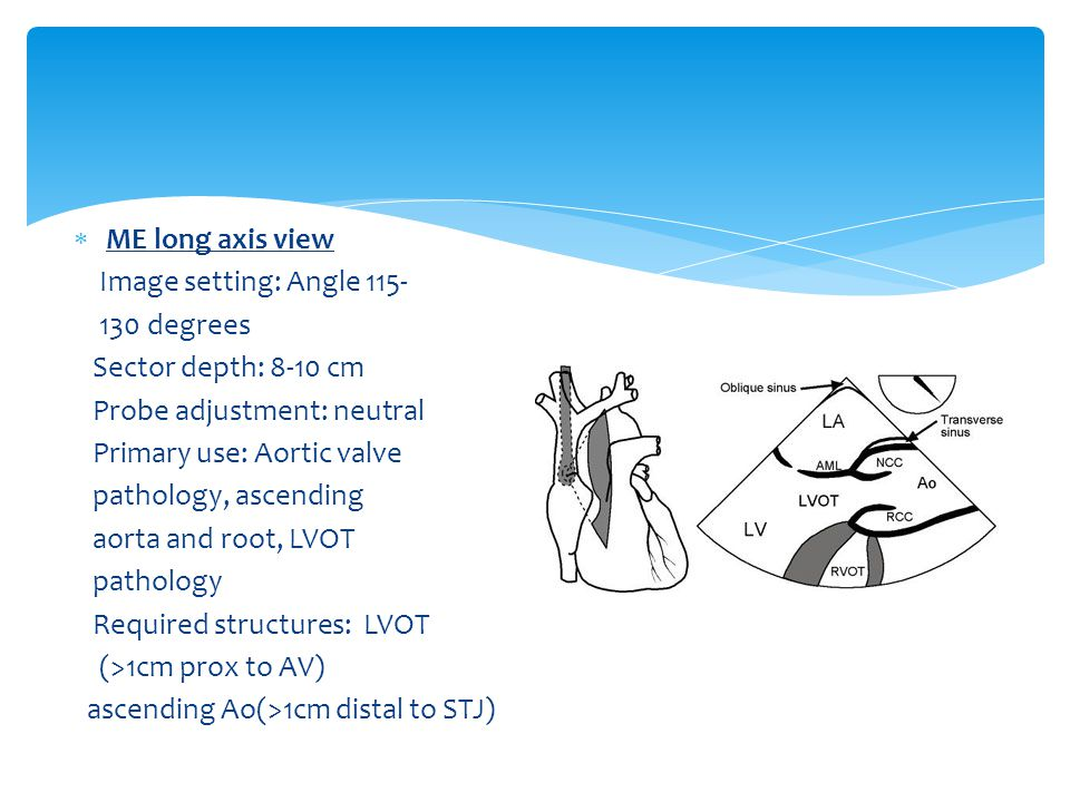 ME long axis view Image setting: Angle 115- 130 degrees. Sector depth: 8-10 cm. Probe adjustment: neutral.
