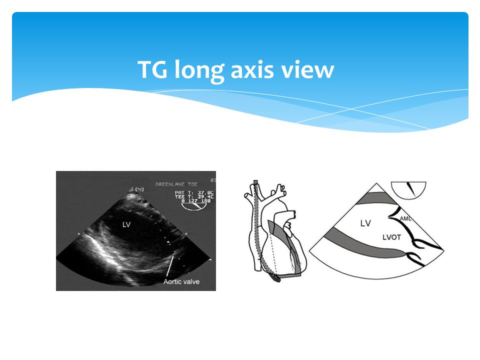 TG long axis view