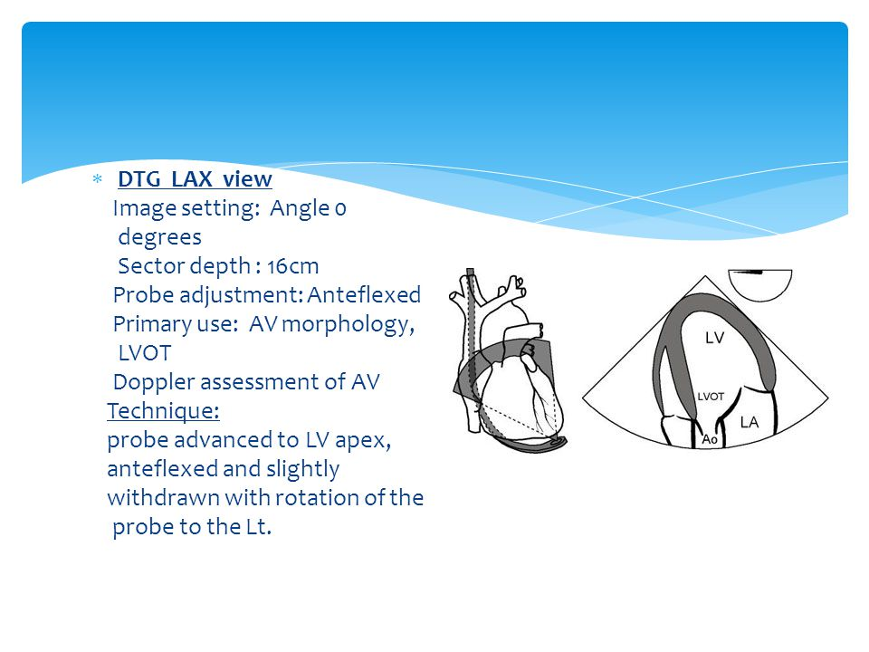 DTG LAX view Image setting: Angle 0. degrees. Sector depth : 16cm. Probe adjustment: Anteflexed.