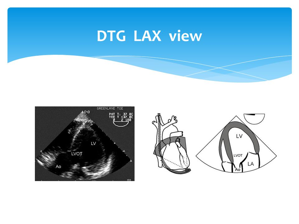 DTG LAX view