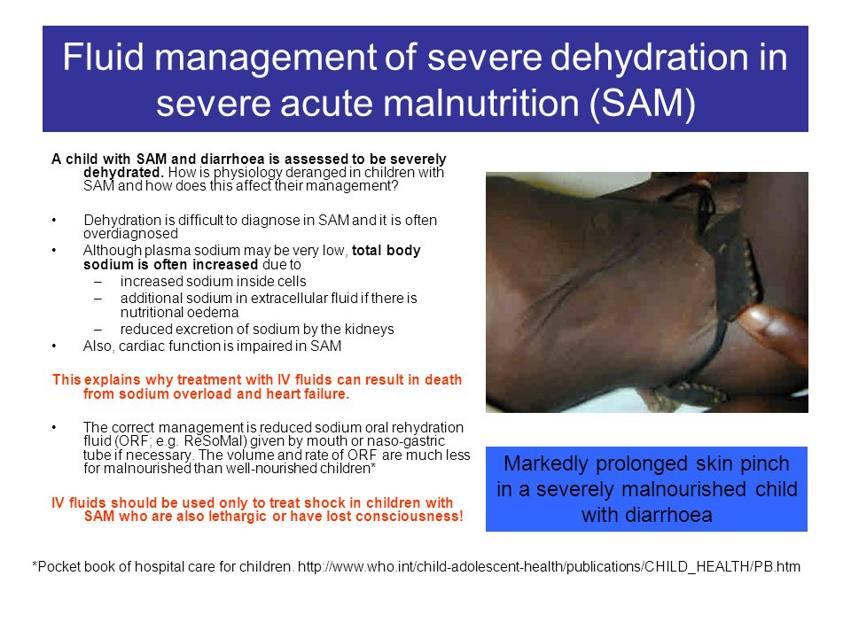 Fluid management of severe dehydration in severe acute malnutrition (SAM)