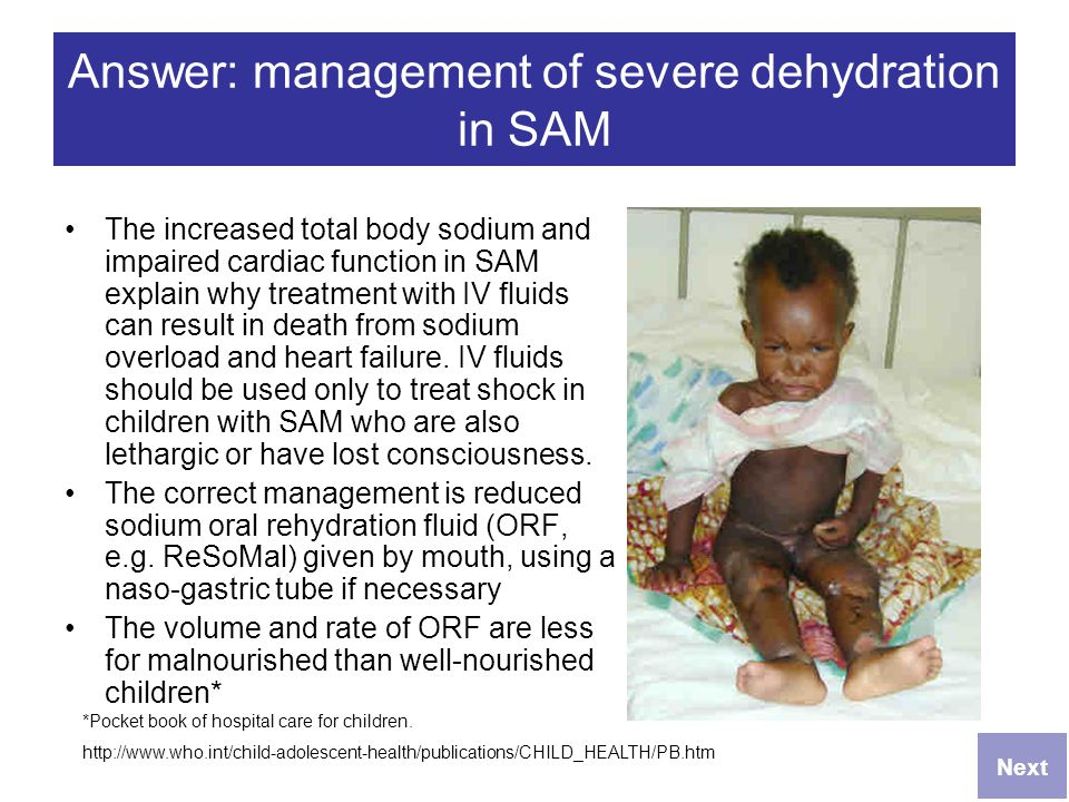 Answer: management of severe dehydration in SAM