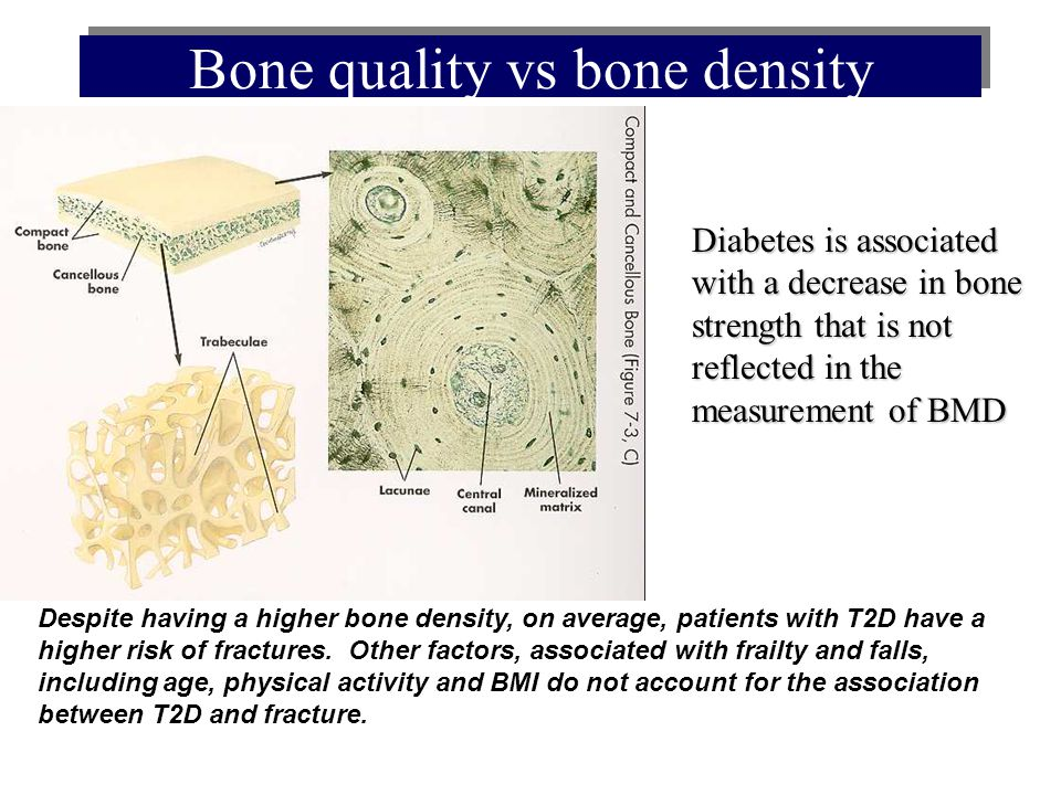 Bone quality vs bone density