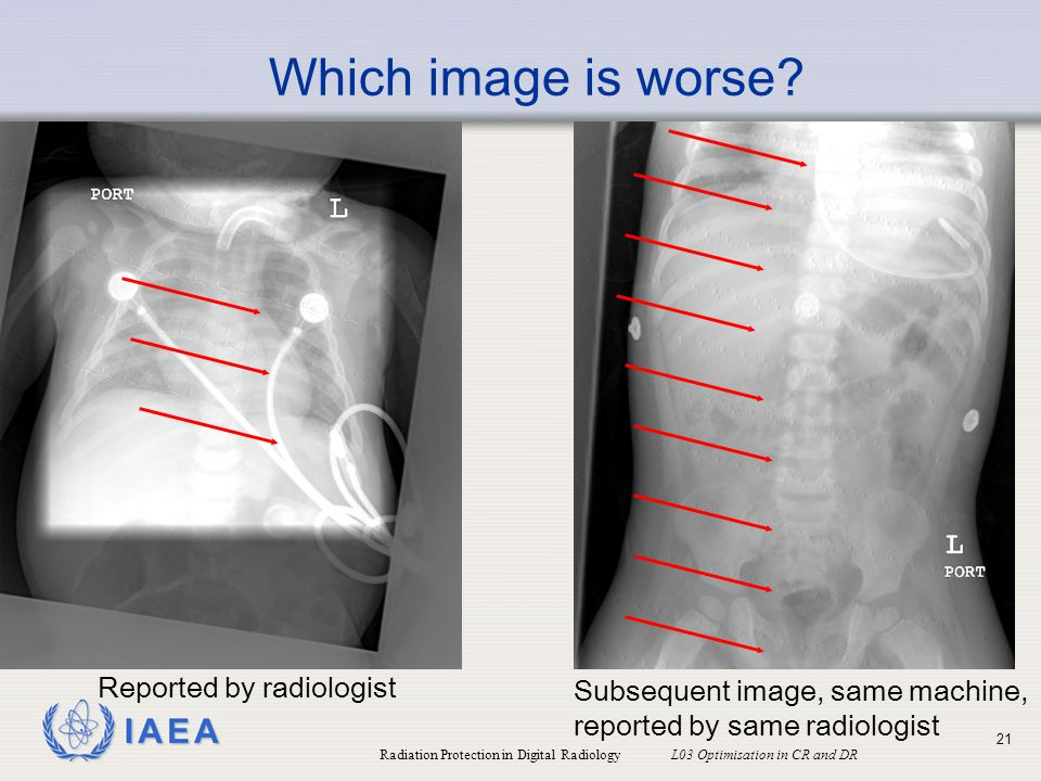 Which image is worse Reported by radiologist