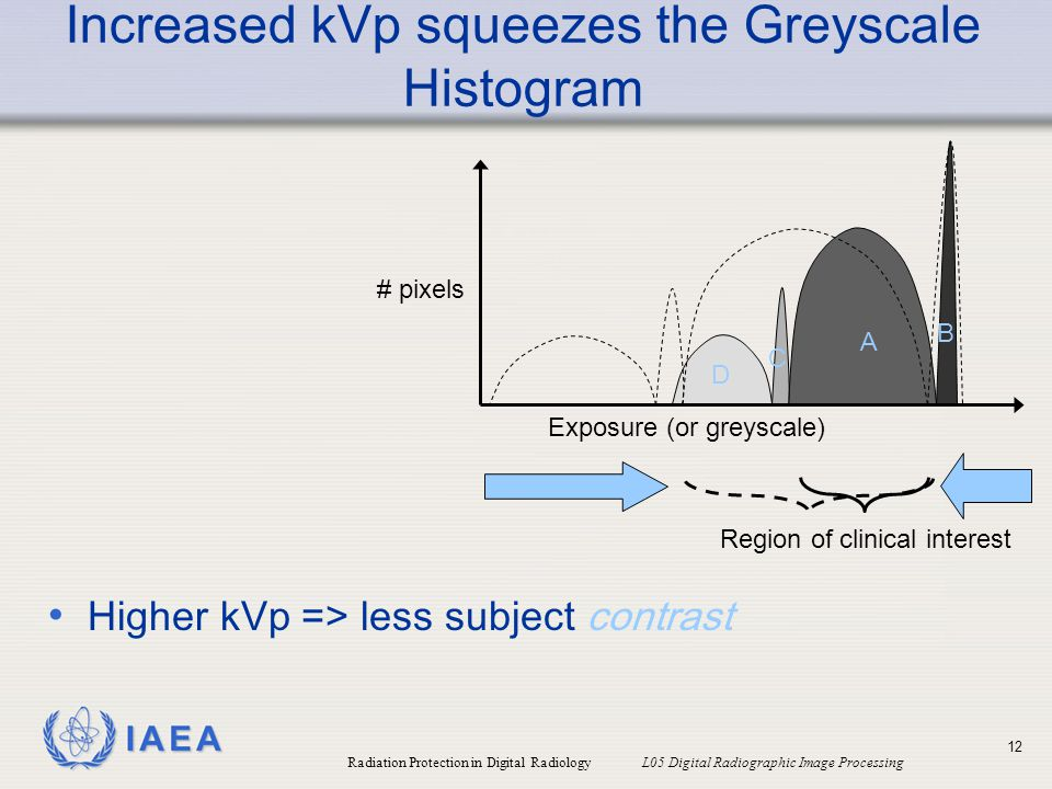 Increased kVp squeezes the Greyscale Histogram