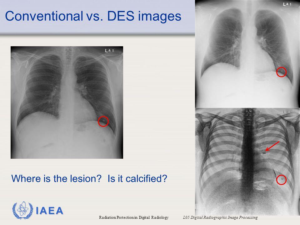 Conventional vs. DES images