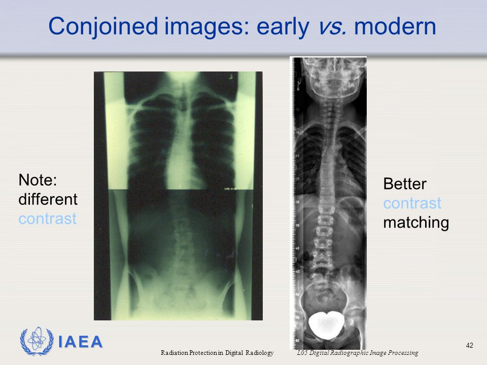 Conjoined images: early vs. modern
