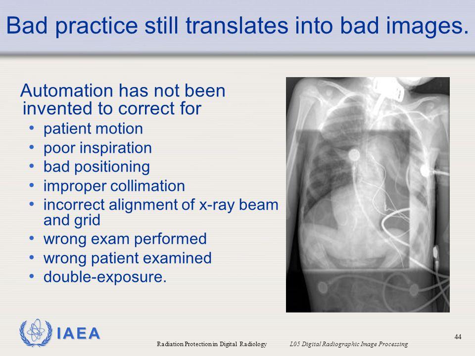 Bad practice still translates into bad images.