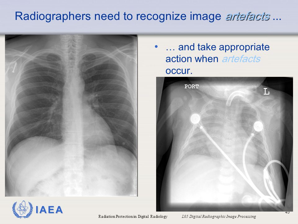 Radiographers need to recognize image artefacts ...