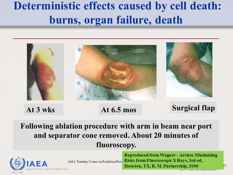 Deterministic effects caused by cell death: burns, organ failure, death