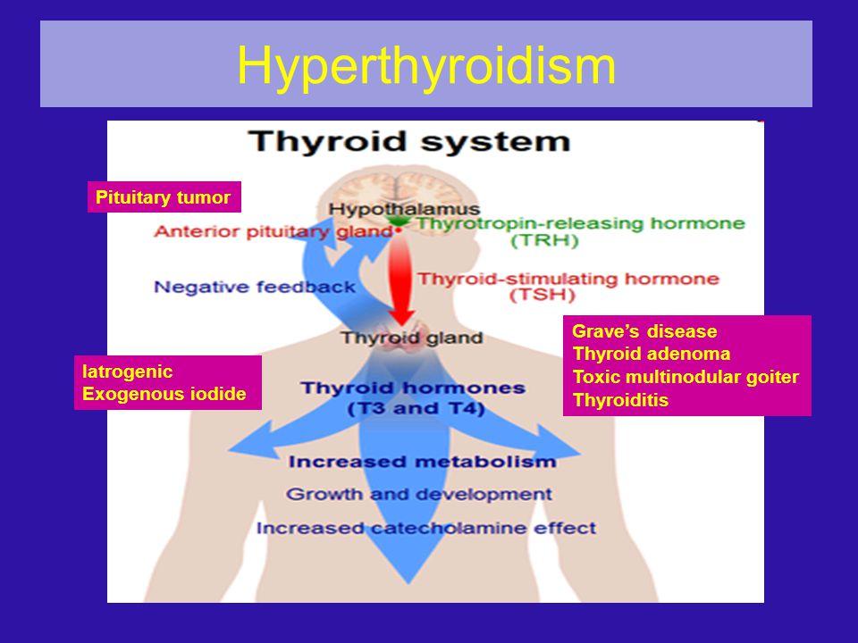 Hyperthyroidism Pituitary tumor Grave's disease Thyroid adenoma