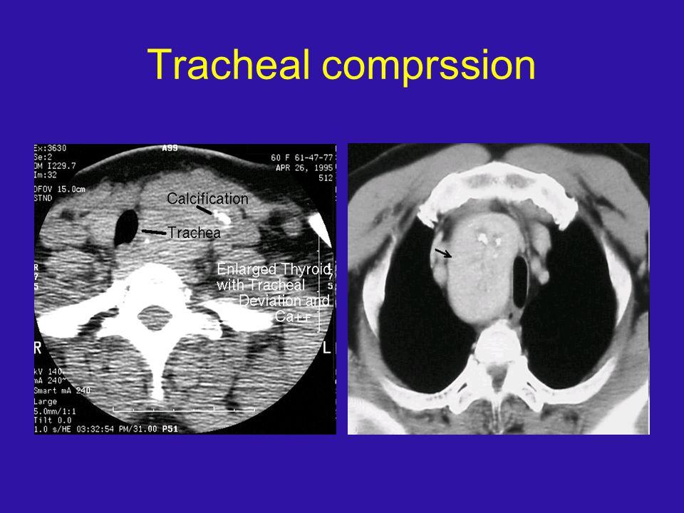 Tracheal comprssion