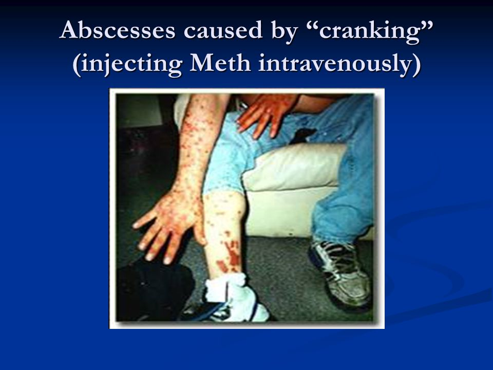 Abscesses caused by cranking (injecting Meth intravenously)