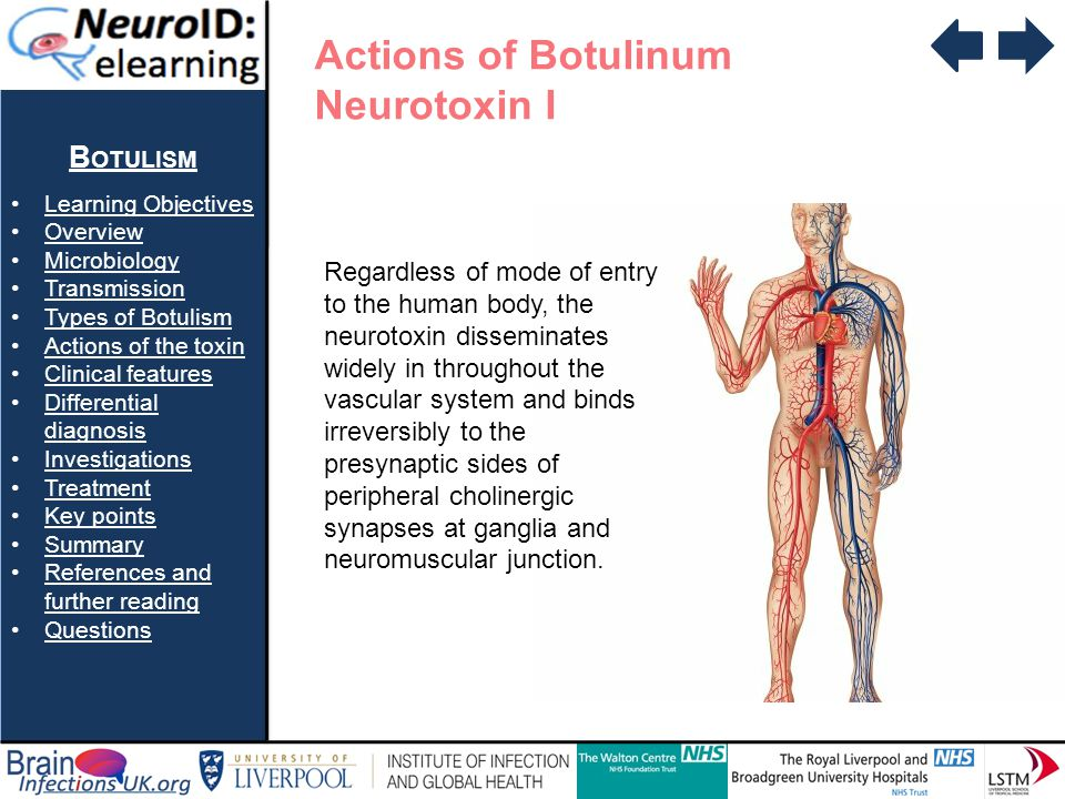 Actions of Botulinum Neurotoxin I Botulism