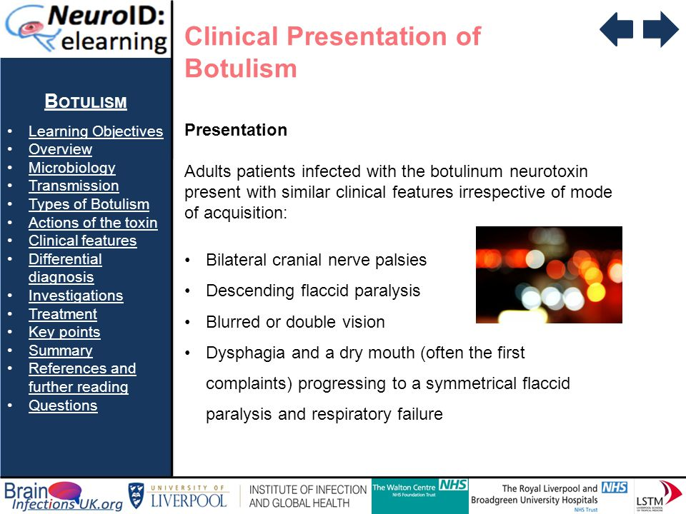 Clinical Presentation of Botulism