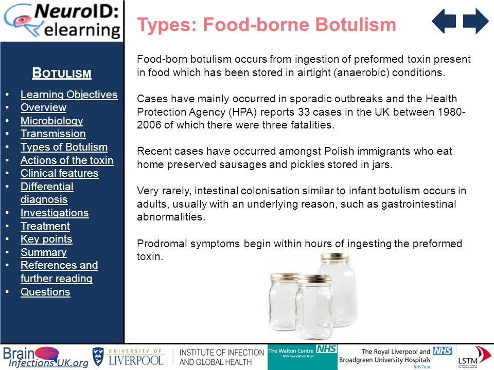 Types: Food-borne Botulism