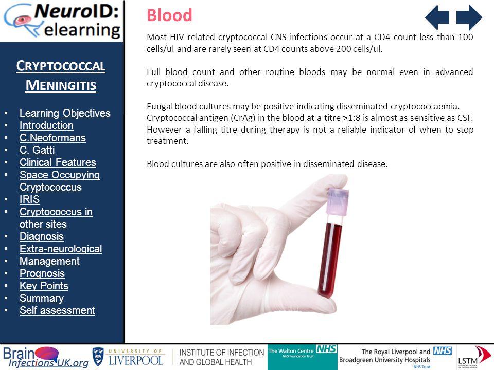 Blood Cryptococcal Meningitis Learning Objectives Introduction