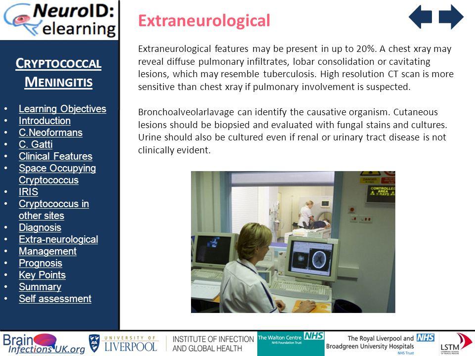 Extraneurological Cryptococcal Meningitis