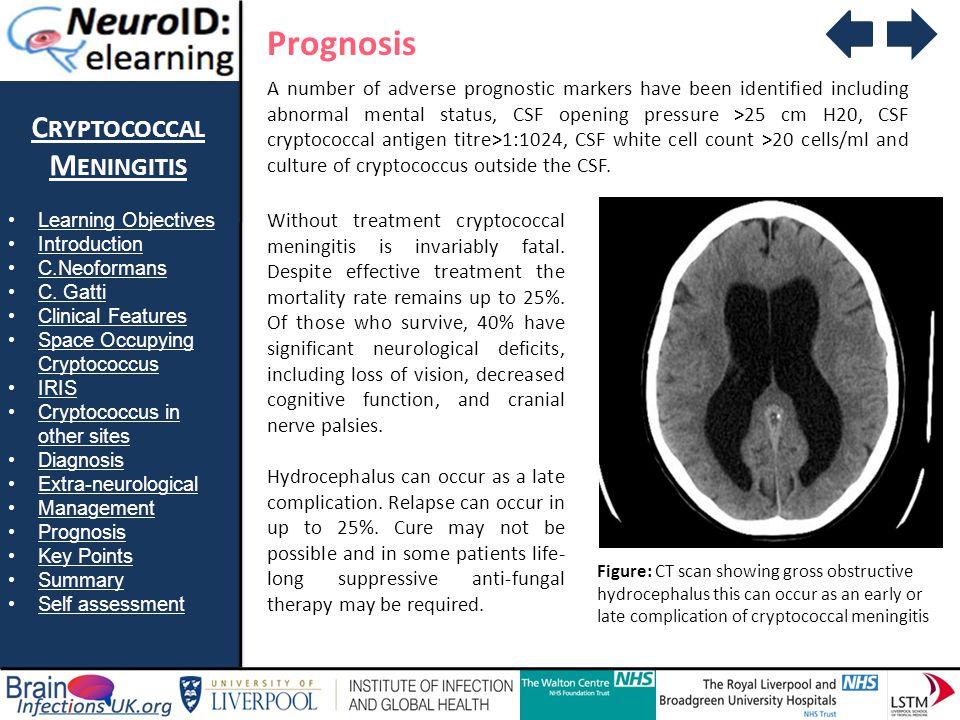 Prognosis Cryptococcal Meningitis